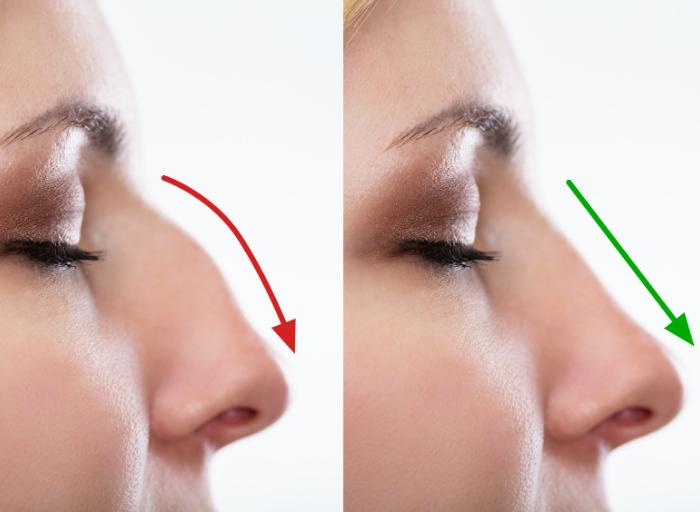 korektanosa Modelowanie nosa kwasem hialuronowym   popraw jego kształt bez operacji plastycznej