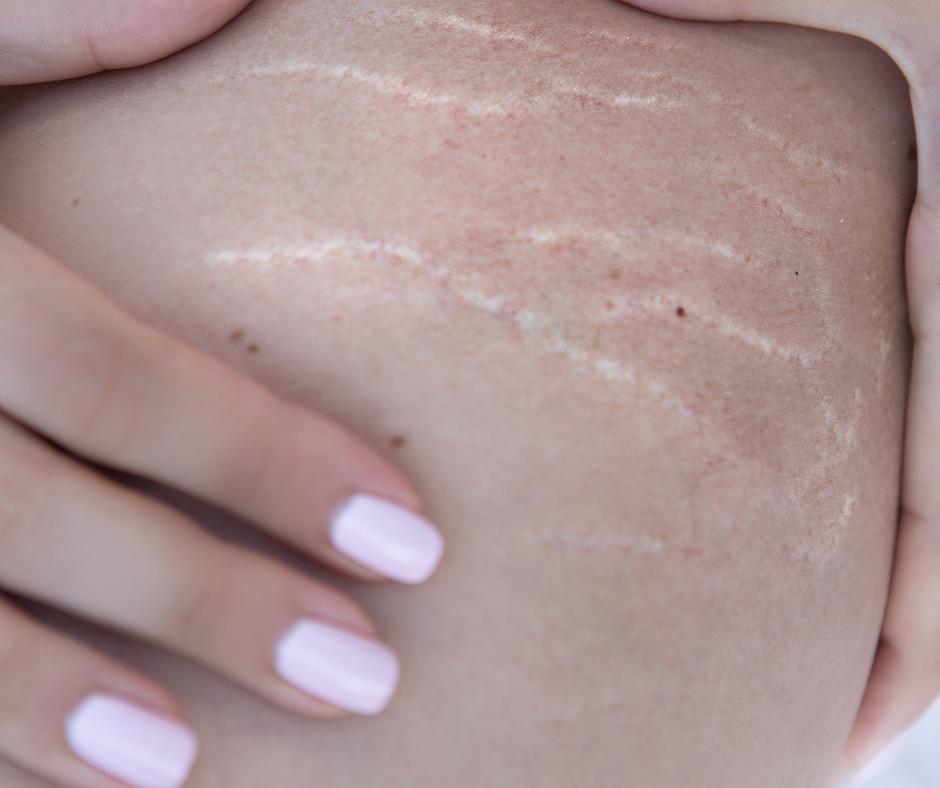 mozna usunac blizny3 Jak skutecznie pozbyć rozstępów po ciąży i odchudzaniu? Czy można usunąć blizny?