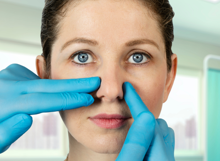 przedkorekta Modelowanie nosa kwasem hialuronowym   popraw jego kształt bez operacji plastycznej