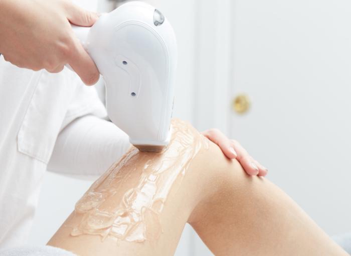 1 1 Czy trwałe usuwanie włosów laserem wpływa na możliwość zajścia w ciążę?