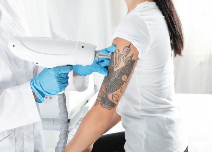 usuniecie tatuazu1 1 Czy usunięcie tatuażu jest możliwe?