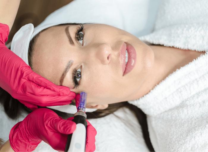 Mezoterapia igłowa i karboksyterapia – Twoja pomoc w walce z cieniami pod oczami!