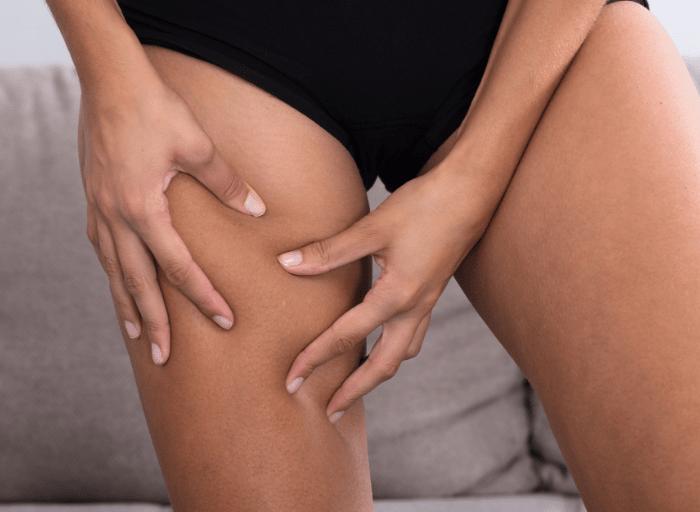 4 fazy rozwoju cellulitu – poznaj przyczyny i etapy powstawania