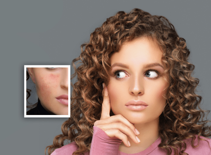 Acne scars - how to remove?