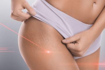 Czy laserowe usuwanie rozstępów jest skuteczne?