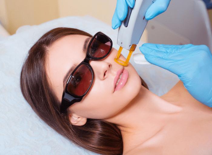 Laserowe usuwanie blizn potrądzikowych – jak się ich skutecznie pozbyć?