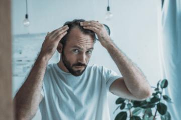 Łysienie androgenowe - co musisz o tym wiedzieć i jak skutecznie zminimalizować ten problem?