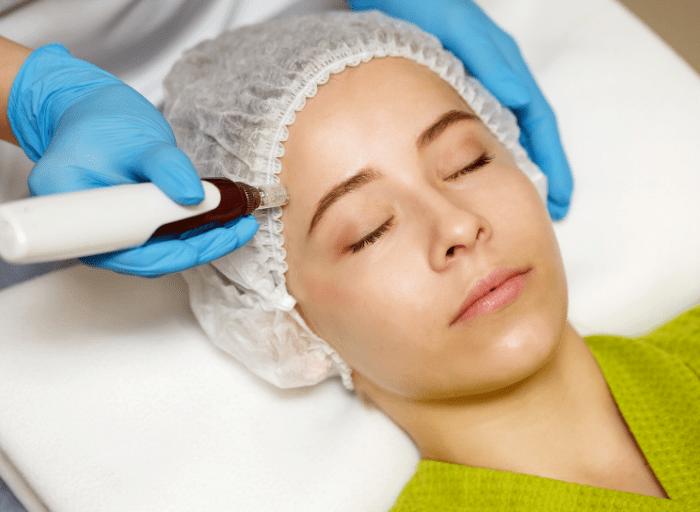 Medycyna estetyczna dla 30 latki. 5 najbardziej popularnych zabiegow 2 Aesthetic medicine for the 30 year old. 5 most popular treatments