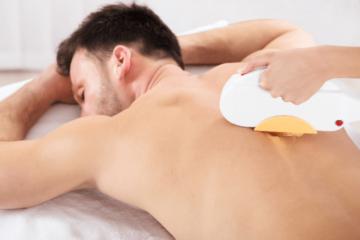Usuwanie owłosienia z pleców u mężczyzn - laser i jego działanie