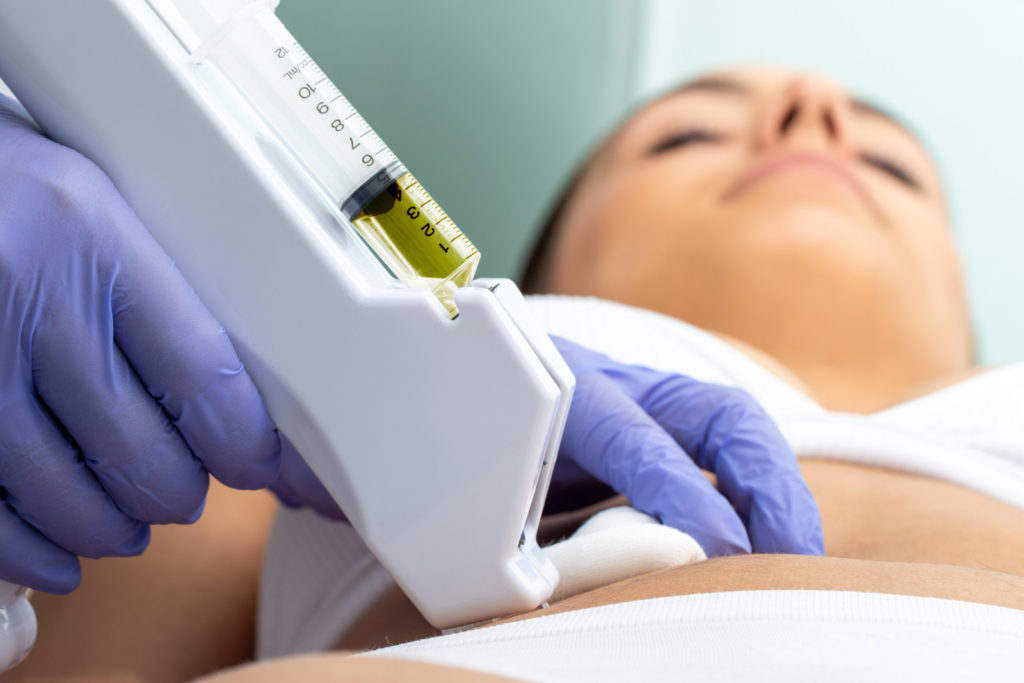 screen 2x 28 1024x683 Discover the most effective methods of body contouring!