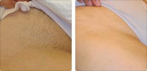 depilacja laserowa uda