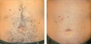 depilacja laserowa brzucha efekty