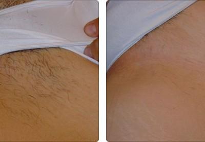 depilacja laserowa bikini efekty