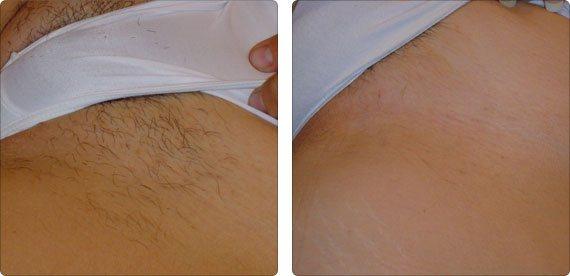 depilacja laserowa krakow