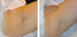 depilacja laserowa pachy efekty