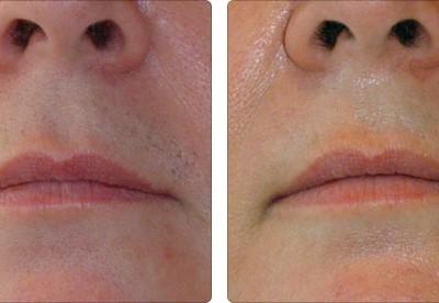 depilacja laserowa wąsik efekt