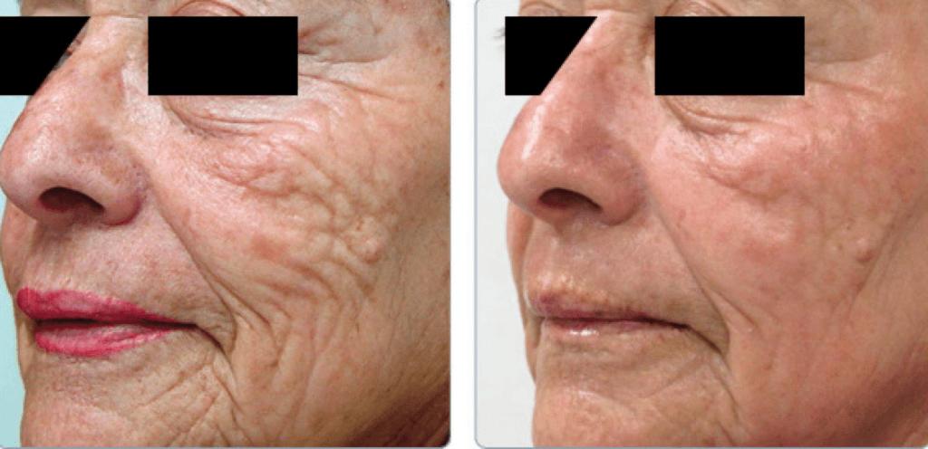 laser frakcyjny krakow 2 1024x496 Globalne odmłodzenie skóry – zabieg, który Cię zachwyci...