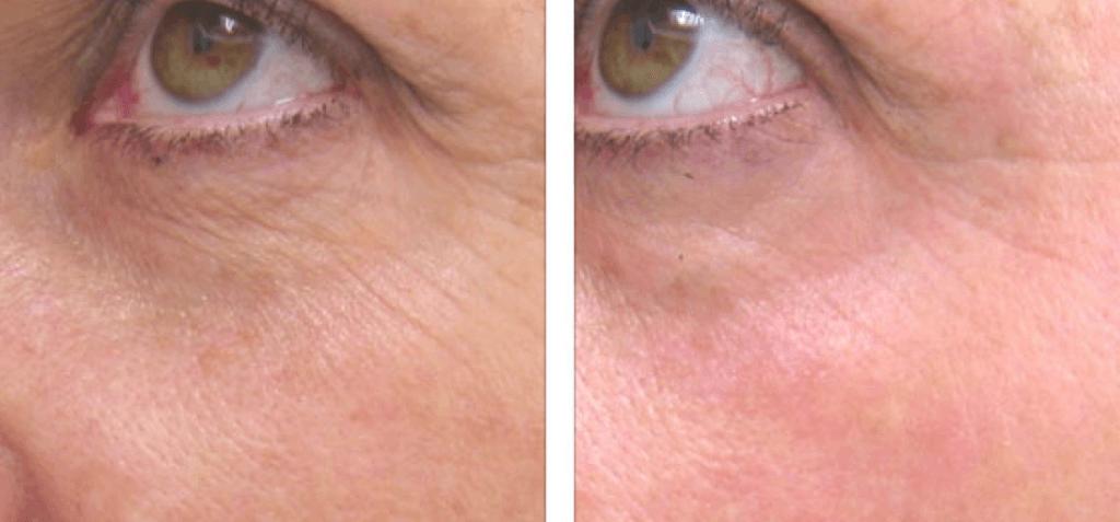 laser frakcyjny krakow 4 1024x477 Globalne odmłodzenie skóry – zabieg, który Cię zachwyci...