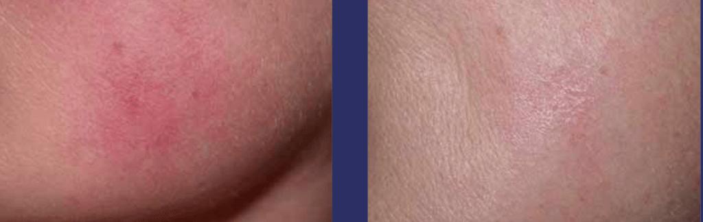 laserowe usuwanie rumienia 15