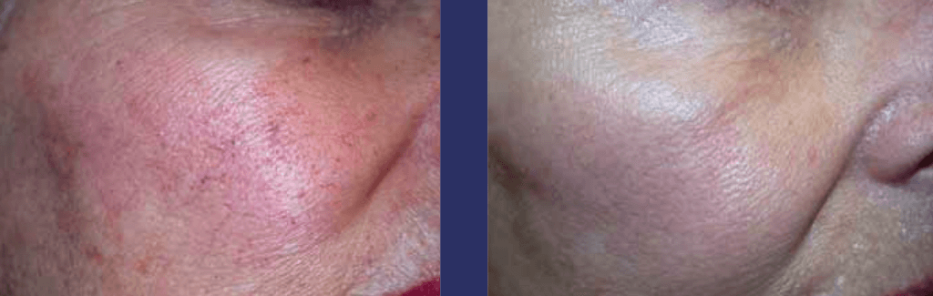 laserowe usuwanie rumienia `6