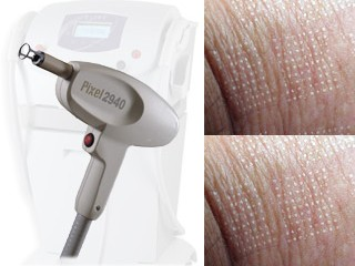 PIXEL – REMOVAL OF SCARS, STRETCH MARKS, DISCOLORATIONS AND WRINKLES