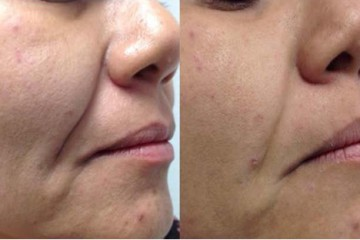 PHOTOREJUVENATION T3 Laser lift – GENTLE FACE LIFTING