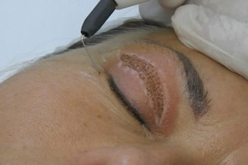 PLASMA IQ – Laser eyelid lifting without scalpel