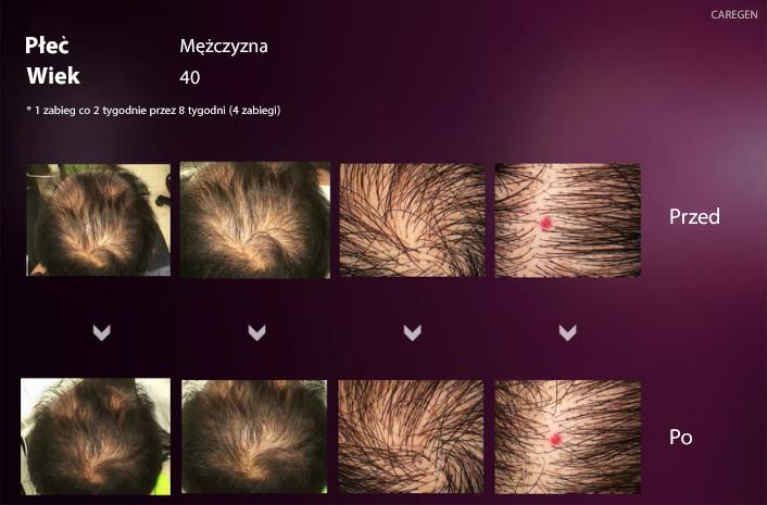 cyr Wypadanie włosów   jak temu zaradzić   poznaj najskuteczniejsze metody