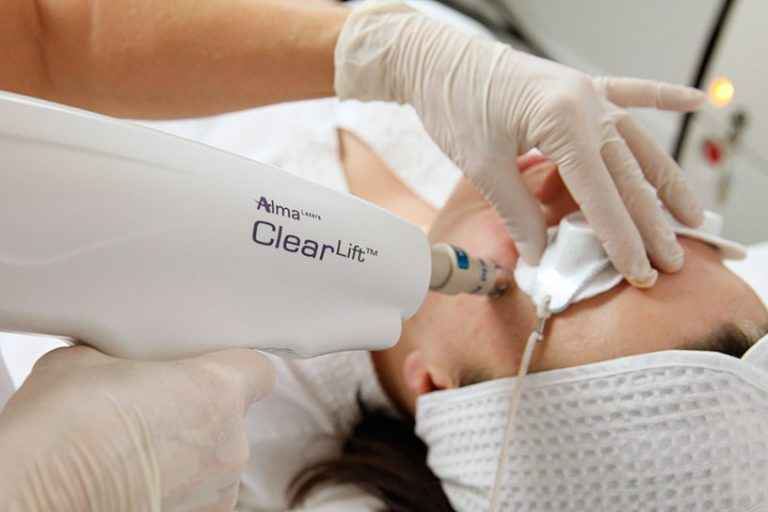 NEW! NON-ABLATIVE FACELIFT CLEARLIFT!