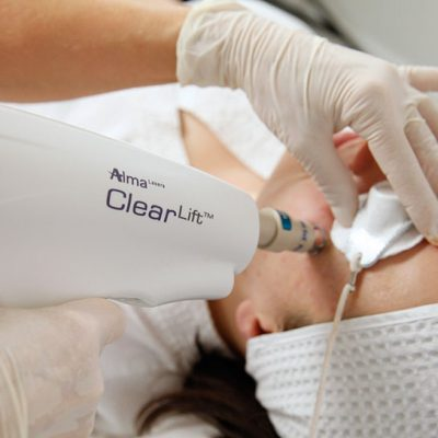 CLEARLIFT™ nieablacyjny lifting i remodeling