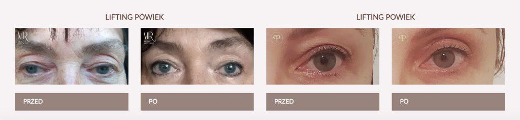 suwanie zmarszczek wokół oczu