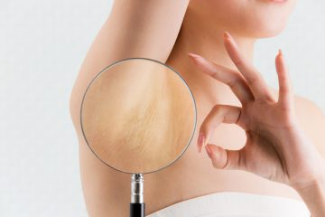 Laser hair removal of light hair – is it possible?