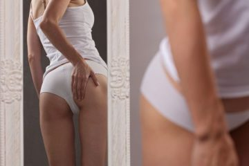 Stretch marks removal – the effects of laser