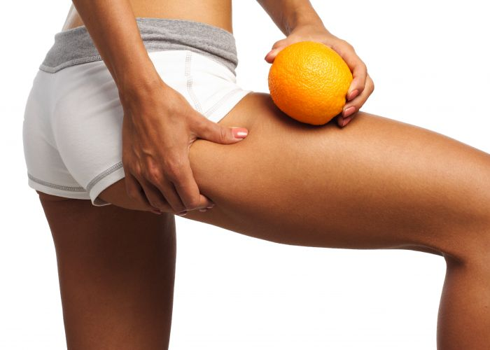 Pomarańczowa skórka –  jak walczyć z niechcianym cellulitem w domu?