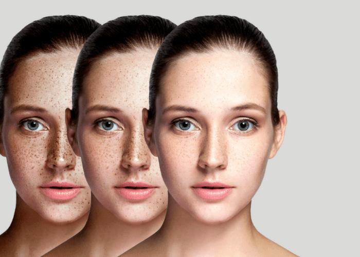 Jak usunac piegi1 How to remove freckles?