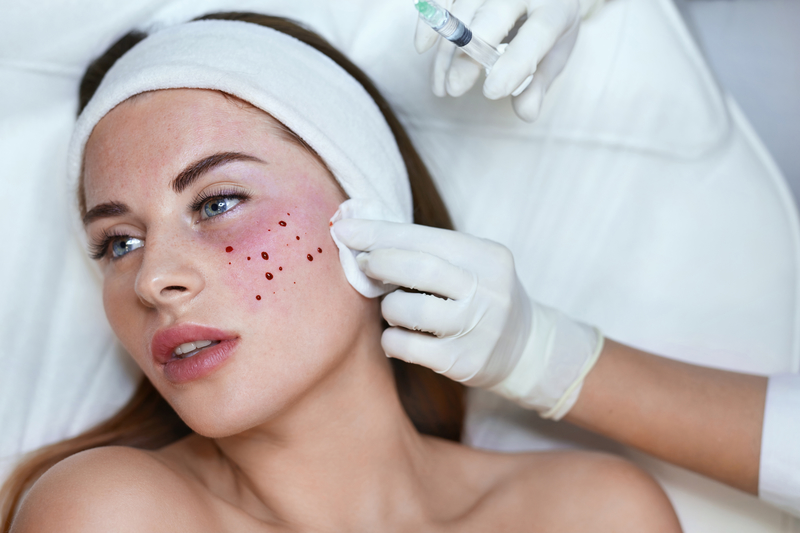 zabieg osocza Mesotherapy treatment   experience the power of strong skin rejuvenation