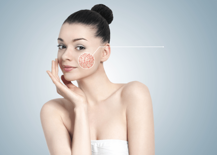 Pielęgnacja domowa skóry naczyniowej