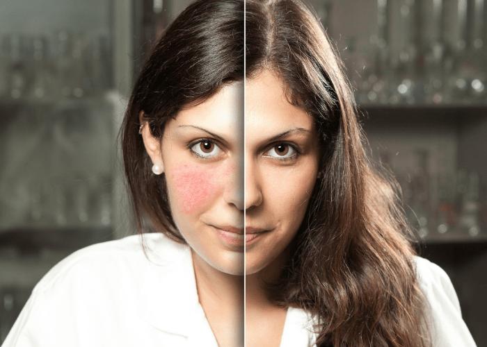 Pielegnacja skory naczyniowej1 1 Pielęgnacja domowa skóry naczyniowej
