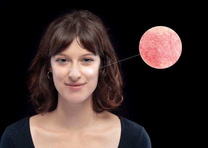Pielegnacja skory naczyniowej2 1 Pielęgnacja domowa skóry naczyniowej