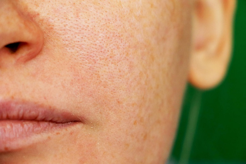 przebarwienia pozapalne2 Post inflammatory discolorations.  How to fight them?