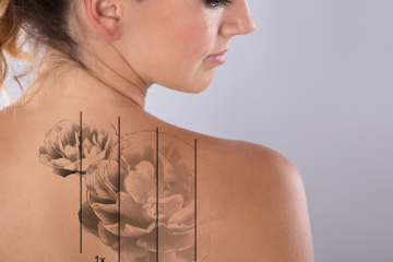 Laser tattoo removal without secrets