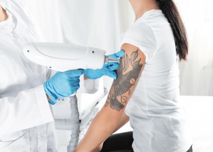 usuwanie tatuazu Laserowe usuwanie tatuaży bez tajemnic