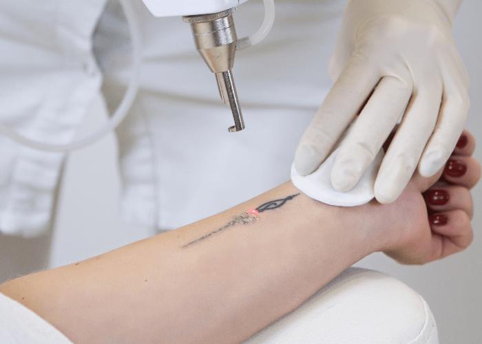 Laserowe usuwanie tatuaży bez tajemnic